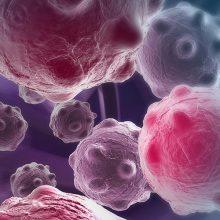 Mudanças nos paradigmas do tratamento do câncer